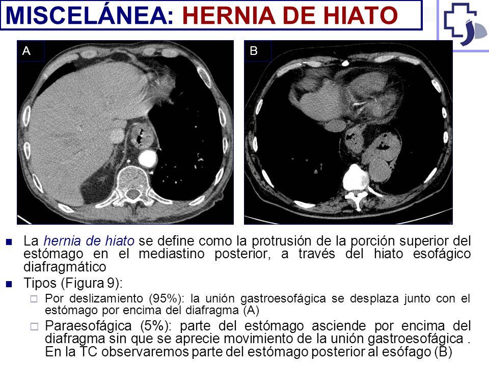 La hernia de hiato se define como la protrusión de la porción superior del estómago en el mediastino posterior, a través del hiato esofágico diafragmá