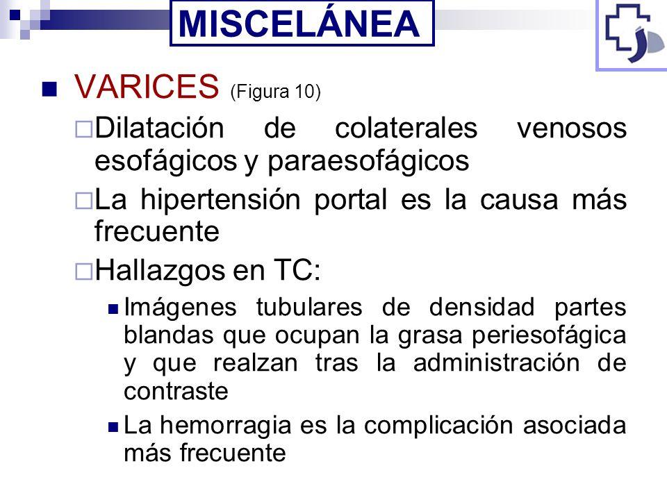 VARICES (Figura 10) Dilatación de colaterales venosos esofágicos y paraesofágicos La hipertensión portal es la causa más frecuente Hallazgos en TC: Im