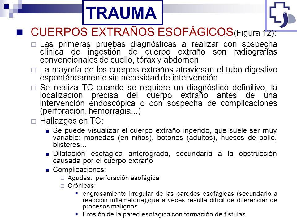 CUERPOS EXTRAÑOS ESOFÁGICOS (Figura 12): Las primeras pruebas diagnósticas a realizar con sospecha clínica de ingestión de cuerpo extraño son radiogra