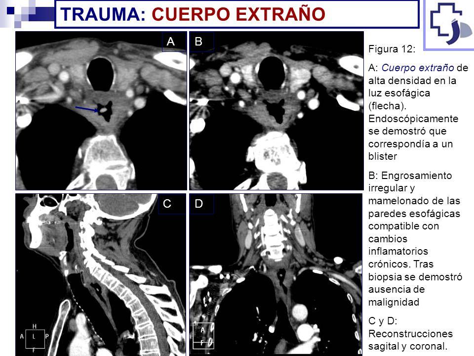 TRAUMA: CUERPO EXTRAÑO Figura 12: A: Cuerpo extraño de alta densidad en la luz esofágica (flecha). Endoscópicamente se demostró que correspondía a un