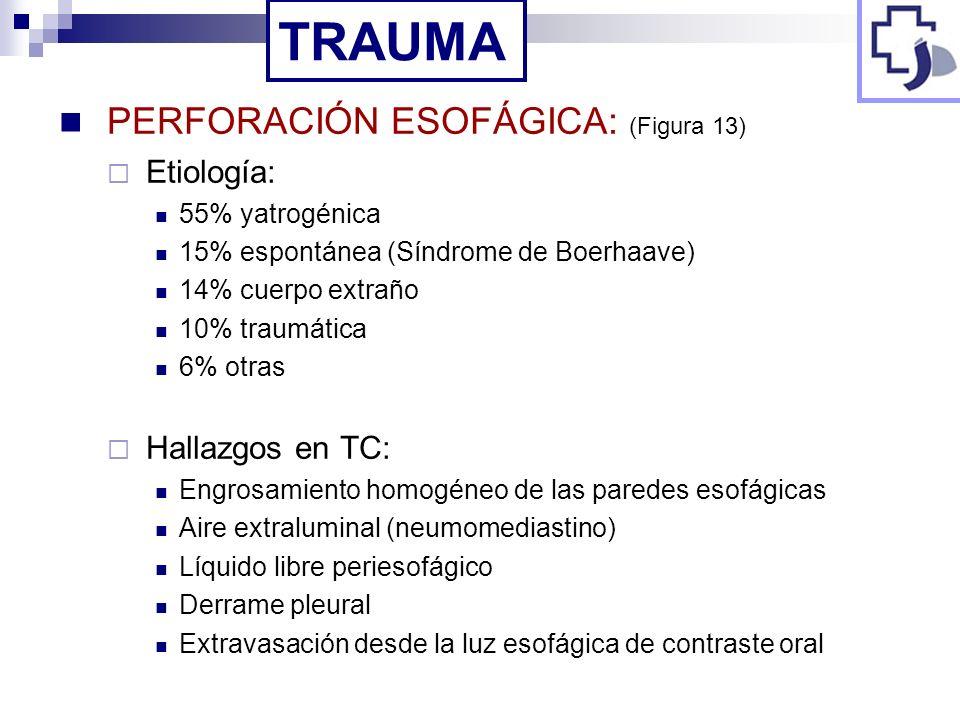 PERFORACIÓN ESOFÁGICA: (Figura 13) Etiología: 55% yatrogénica 15% espontánea (Síndrome de Boerhaave) 14% cuerpo extraño 10% traumática 6% otras Hallaz