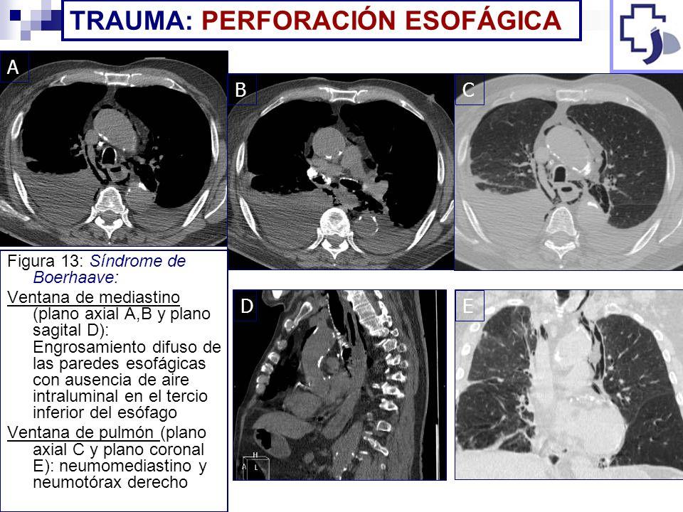 Figura 13: Síndrome de Boerhaave: Ventana de mediastino (plano axial A,B y plano sagital D): Engrosamiento difuso de las paredes esofágicas con ausenc