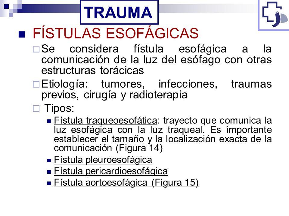 FÍSTULAS ESOFÁGICAS Se considera fístula esofágica a la comunicación de la luz del esófago con otras estructuras torácicas Etiología: tumores, infecci