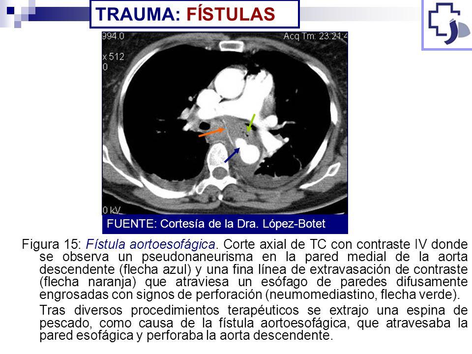 Figura 15: Fístula aortoesofágica. Corte axial de TC con contraste IV donde se observa un pseudonaneurisma en la pared medial de la aorta descendente