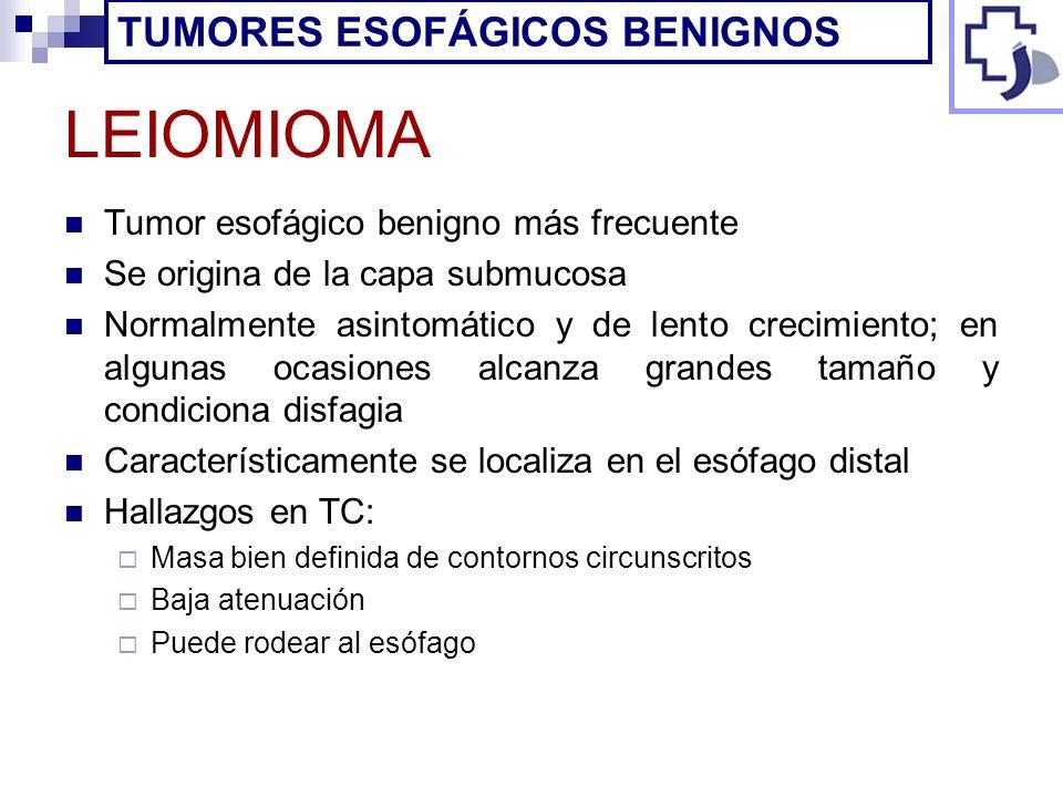 LEIOMIOMA Tumor esofágico benigno más frecuente Se origina de la capa submucosa Normalmente asintomático y de lento crecimiento; en algunas ocasiones