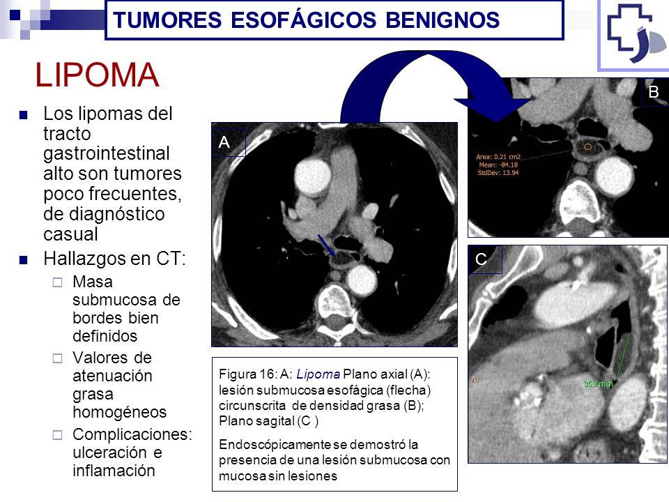 Los lipomas del tracto gastrointestinal alto son tumores poco frecuentes, de diagnóstico casual Hallazgos en CT: Masa submucosa de bordes bien definid