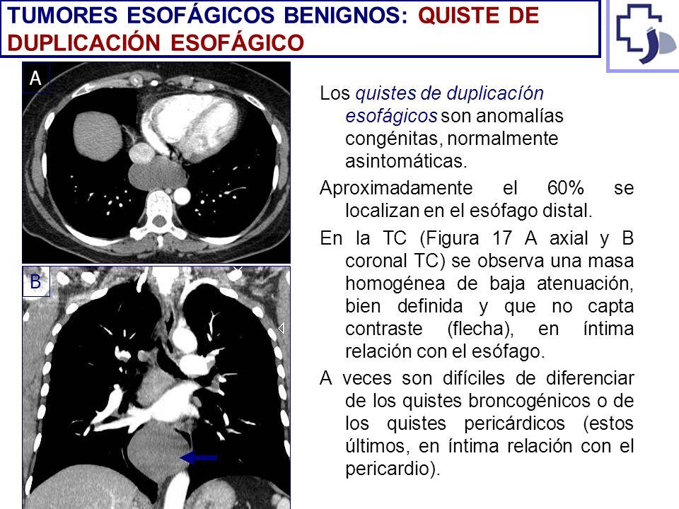 Los quistes de duplicacíón esofágicos son anomalías congénitas, normalmente asintomáticas. Aproximadamente el 60% se localizan en el esófago distal. E