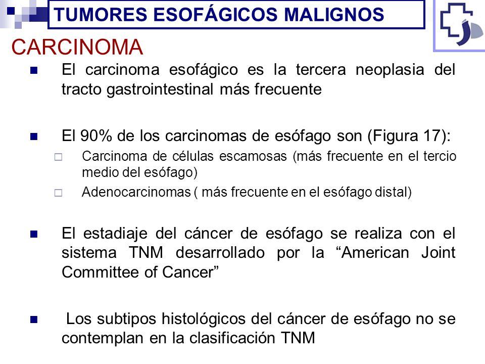CARCINOMA El carcinoma esofágico es la tercera neoplasia del tracto gastrointestinal más frecuente El 90% de los carcinomas de esófago son (Figura 17)