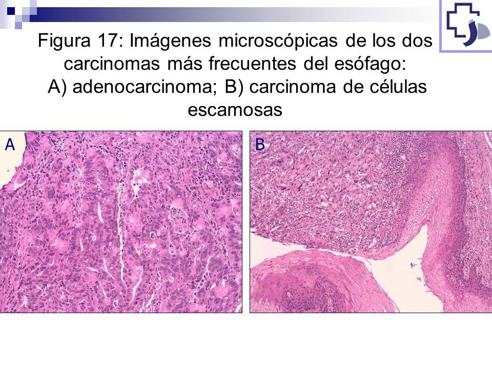 Figura 17: Imágenes microscópicas de los dos carcinomas más frecuentes del esófago: A) adenocarcinoma; B) carcinoma de células escamosas AB