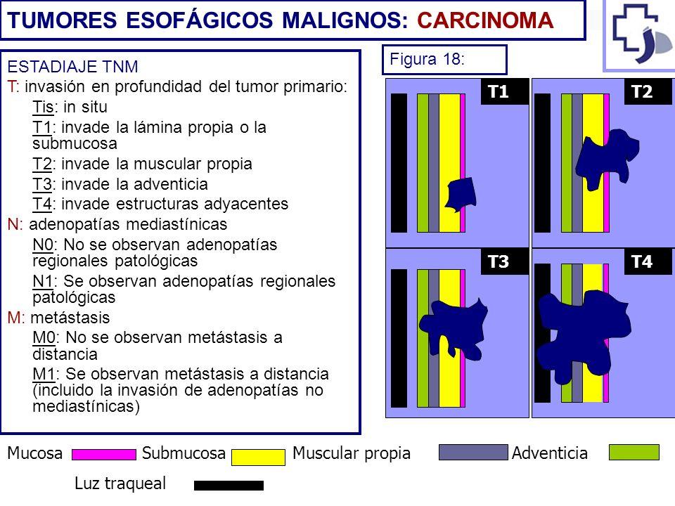 ESTADIAJE TNM T: invasión en profundidad del tumor primario: Tis: in situ T1: invade la lámina propia o la submucosa T2: invade la muscular propia T3:
