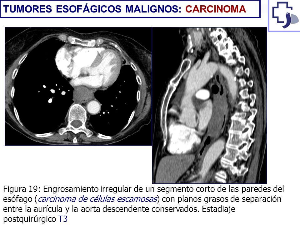 Figura 19: Engrosamiento irregular de un segmento corto de las paredes del esófago (carcinoma de células escamosas) con planos grasos de separación en