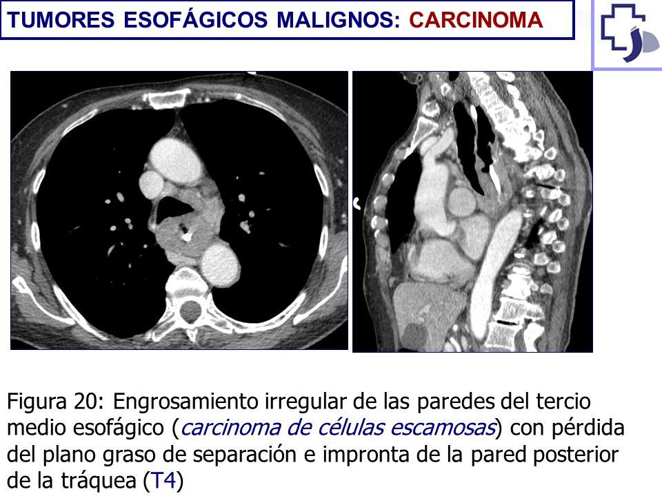 Figura 20: Engrosamiento irregular de las paredes del tercio medio esofágico (carcinoma de células escamosas) con pérdida del plano graso de separació