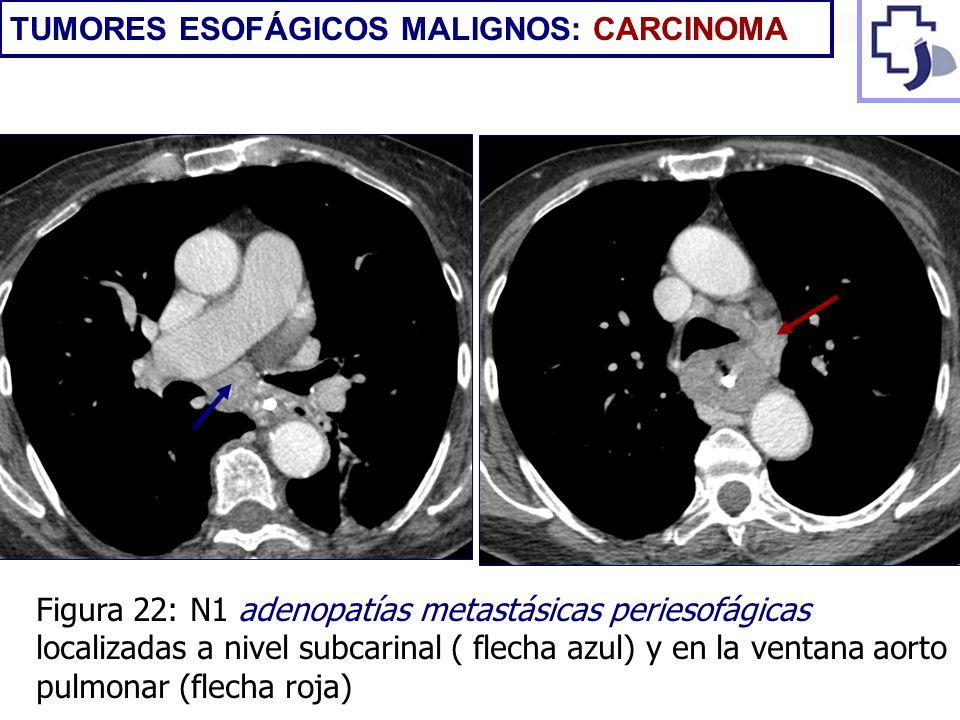 Figura 22: N1 adenopatías metastásicas periesofágicas localizadas a nivel subcarinal ( flecha azul) y en la ventana aorto pulmonar (flecha roja) TUMOR