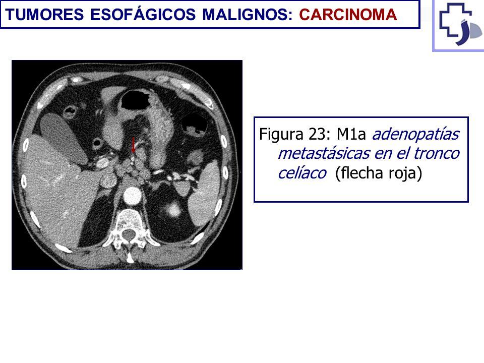 Figura 23: M1a adenopatías metastásicas en el tronco celíaco (flecha roja)
