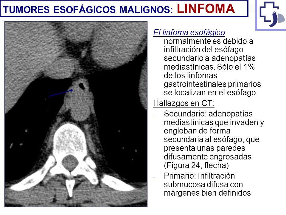El linfoma esofágico normalmente es debido a infiltración del esófago secundario a adenopatías mediastínicas. Sólo el 1% de los linfomas gastrointesti