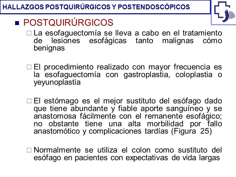 POSTQUIRÚRGICOS La esofaguectomía se lleva a cabo en el tratamiento de lesiones esofágicas tanto malignas cómo benignas El procedimiento realizado con