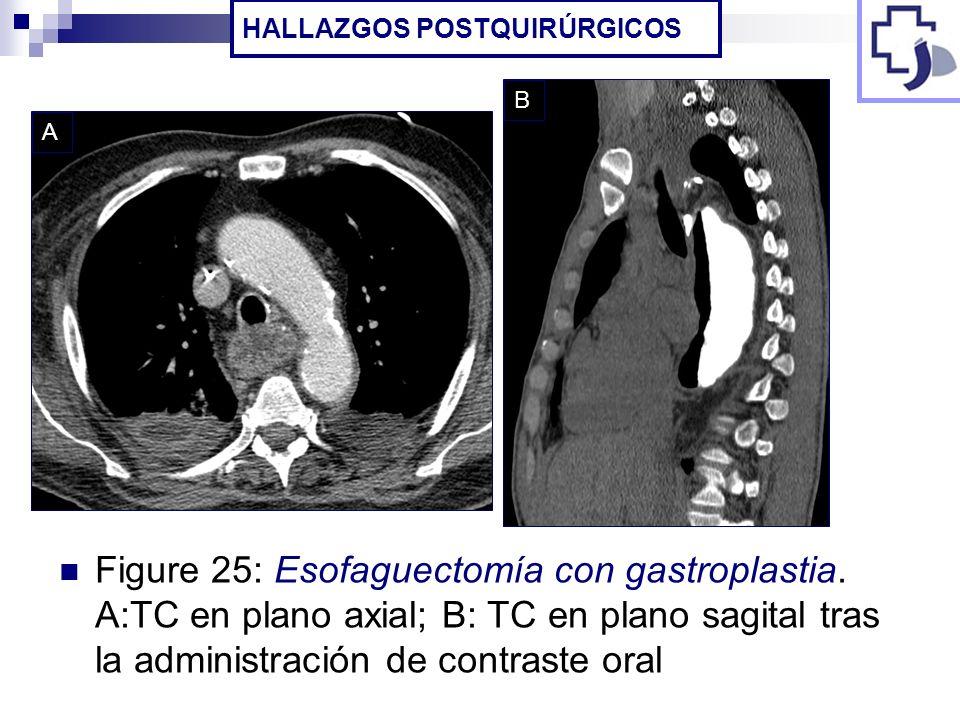 Figure 25: Esofaguectomía con gastroplastia. A:TC en plano axial; B: TC en plano sagital tras la administración de contraste oral HALLAZGOS POSTQUIRÚR