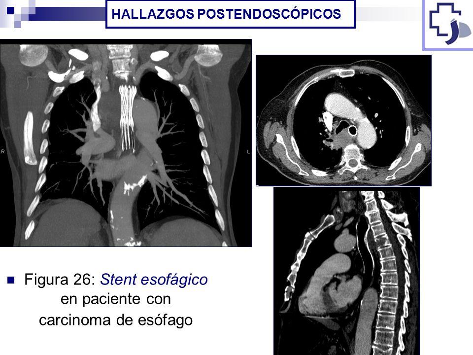 Figura 26: Stent esofágico en paciente con carcinoma de esófago HALLAZGOS POSTENDOSCÓPICOS