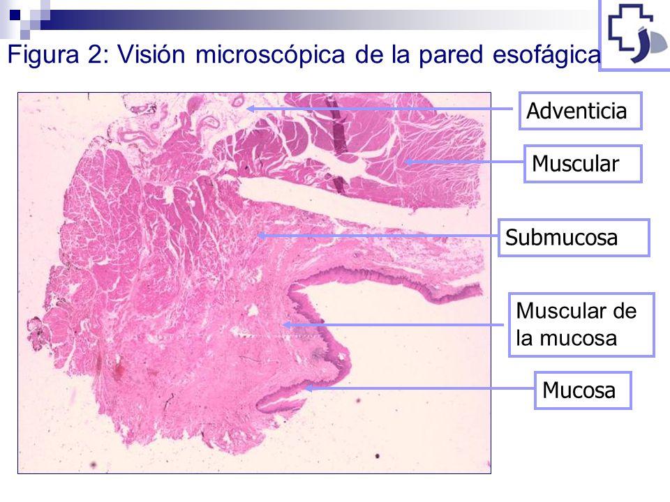 Figura 2: Visión microscópica de la pared esofágica MucosaAdventiciaMuscularSubmucosa Muscular de la mucosa