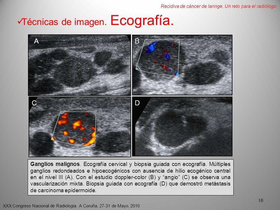 Técnicas de imagen.Ecografía. AB CD Ganglios malignos.