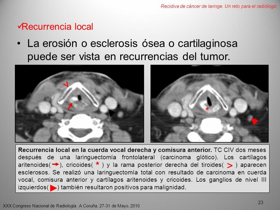 Recurrencia local La erosión o esclerosis ósea o cartilaginosa puede ser vista en recurrencias del tumor.