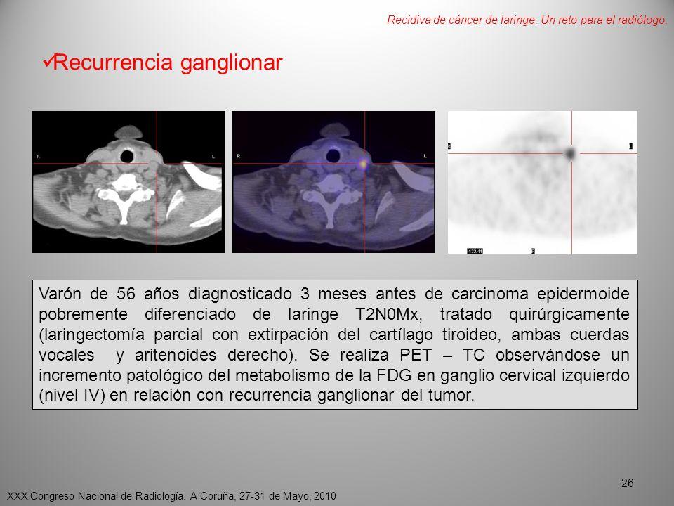 Recurrencia ganglionar Varón de 56 años diagnosticado 3 meses antes de carcinoma epidermoide pobremente diferenciado de laringe T2N0Mx, tratado quirúrgicamente (laringectomía parcial con extirpación del cartílago tiroideo, ambas cuerdas vocales y aritenoides derecho).