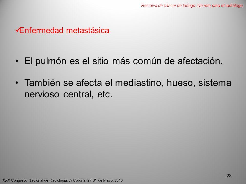 Enfermedad metastásica El pulmón es el sitio más común de afectación.