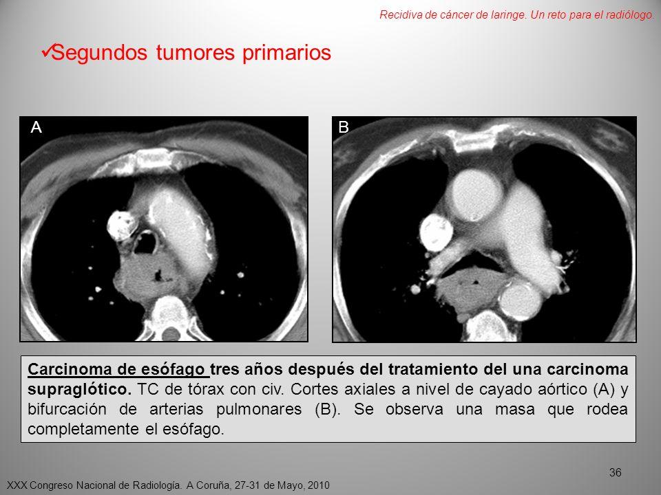 Segundos tumores primarios AB Carcinoma de esófago tres años después del tratamiento del una carcinoma supraglótico.