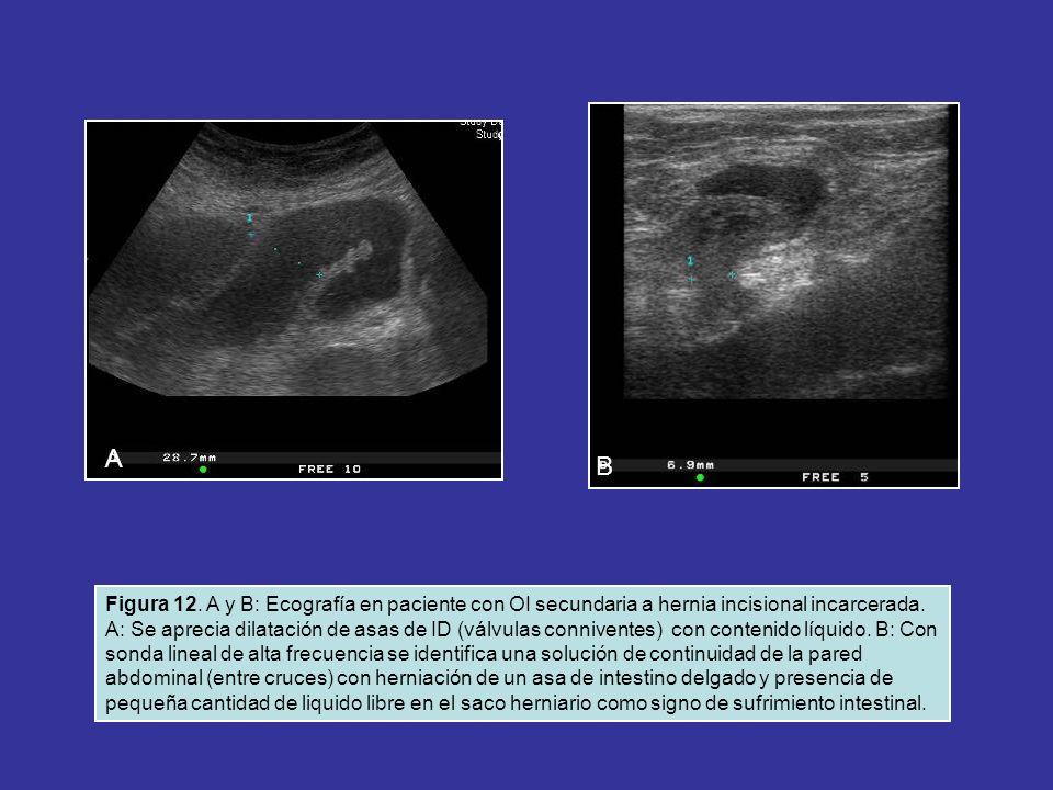 Figura 12. A y B: Ecografía en paciente con OI secundaria a hernia incisional incarcerada. A: Se aprecia dilatación de asas de ID (válvulas connivente