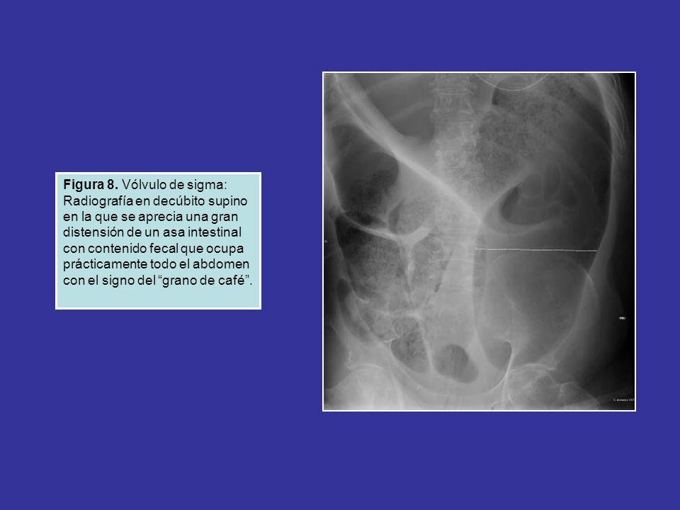 Figura 8. Vólvulo de sigma: Radiografía en decúbito supino en la que se aprecia una gran distensión de un asa intestinal con contenido fecal que ocupa