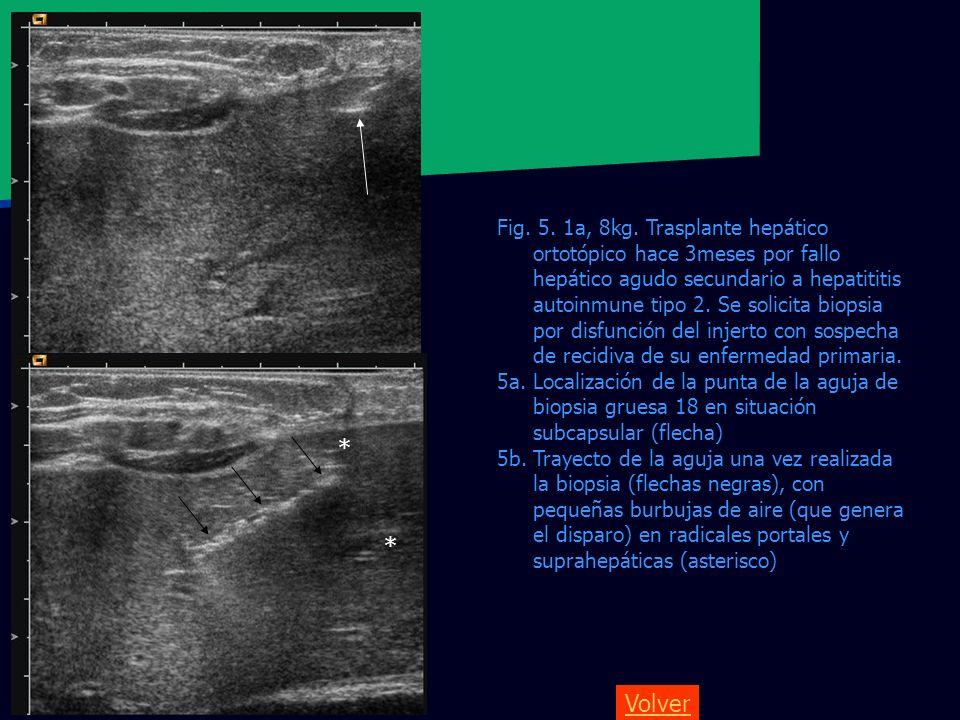 Volver Fig. 5. 1a, 8kg. Trasplante hepático ortotópico hace 3meses por fallo hepático agudo secundario a hepatititis autoinmune tipo 2. Se solicita bi