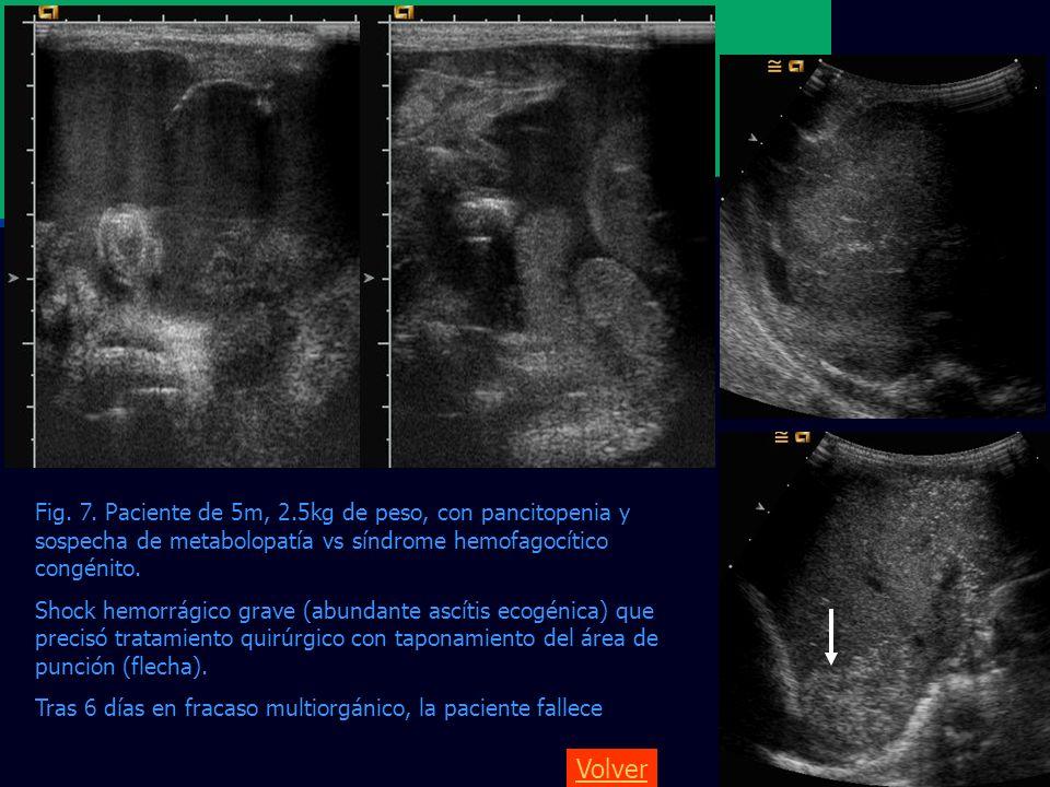 Fig. 7. Paciente de 5m, 2.5kg de peso, con pancitopenia y sospecha de metabolopatía vs síndrome hemofagocítico congénito. Shock hemorrágico grave (abu