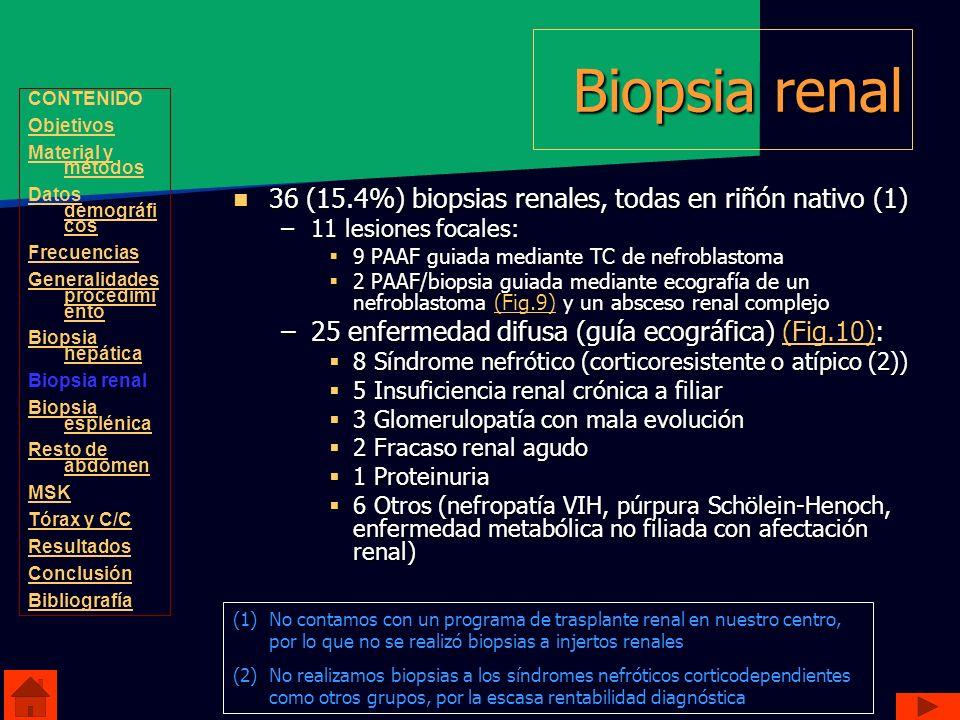 Biopsia renal 36 (15.4%) biopsias renales, todas en riñón nativo (1) 36 (15.4%) biopsias renales, todas en riñón nativo (1) –11 lesiones focales: 9 PA