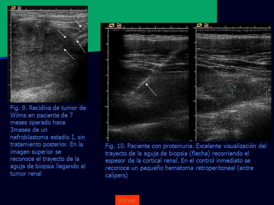 Volver Fig. 10. Paciente con proteinuria. Excelente visualización del trayecto de la aguja de biopsia (flecha) recorriendo el espesor de la cortical r