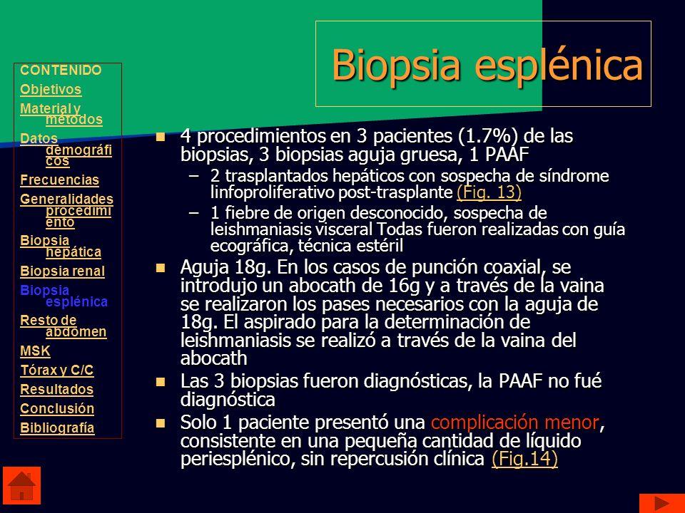 Biopsia esplénica 4 procedimientos en 3 pacientes (1.7%) de las biopsias, 3 biopsias aguja gruesa, 1 PAAF 4 procedimientos en 3 pacientes (1.7%) de la