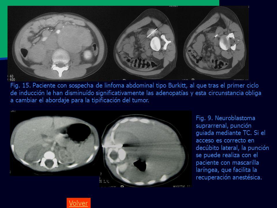 Volver Fig. 15. Paciente con sospecha de linfoma abdominal tipo Burkitt, al que tras el primer ciclo de inducción le han disminuído significativamente