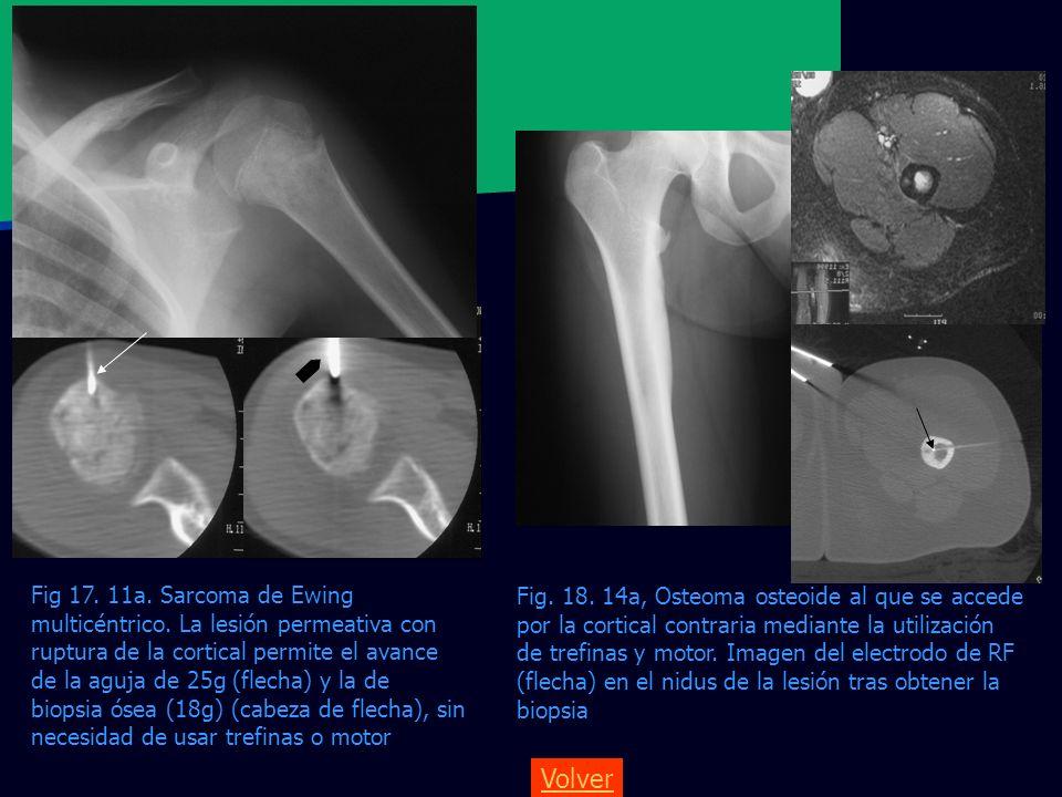 Fig. 18. 14a, Osteoma osteoide al que se accede por la cortical contraria mediante la utilización de trefinas y motor. Imagen del electrodo de RF (fle