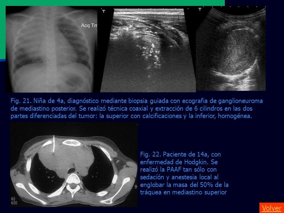 Volver Fig. 21. Niña de 4a, diagnóstico mediante biopsia guiada con ecografia de ganglioneuroma de mediastino posterior. Se realizó técnica coaxial y