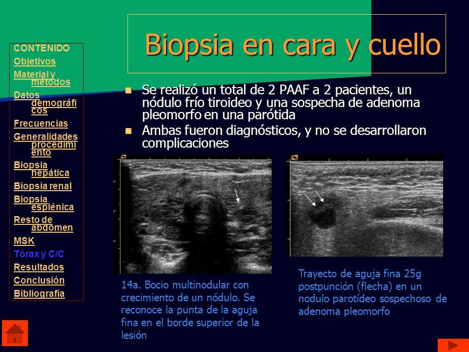 Biopsia en cara y cuello Se realizó un total de 2 PAAF a 2 pacientes, un nódulo frío tiroideo y una sospecha de adenoma pleomorfo en una parótida Se r