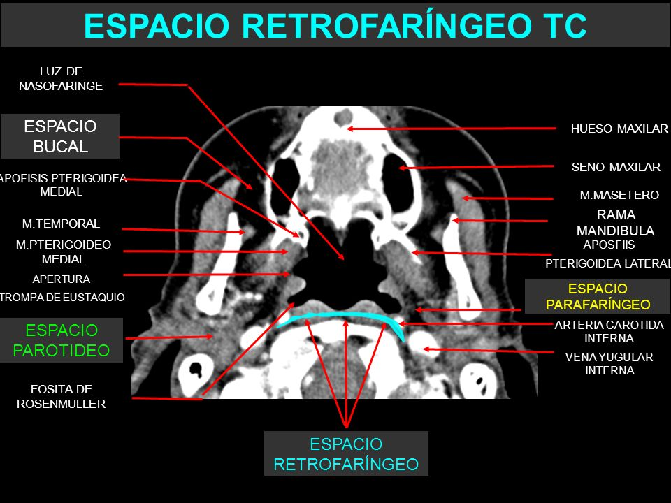 SENO MAXILAR M.TEMPORAL M.MASETERO APOFISIS PTERIGOIDEA MEDIAL APOSFIIS PTERIGOIDEA LATERAL LUZ DE NASOFARINGE FOSITA DE ROSENMULLER M.PTERIGOIDEO MED