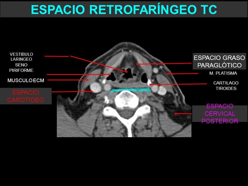 CARTILAGO TIROIDES SENO PIRIFORME VESTIBULO LARINGEO ESPACIO RETROFARÍNGEO TC MUSCULO ECM M. PLATISMA ESPACIO GRASO PARAGLÓTICO ESPACIO CERVICAL POSTE