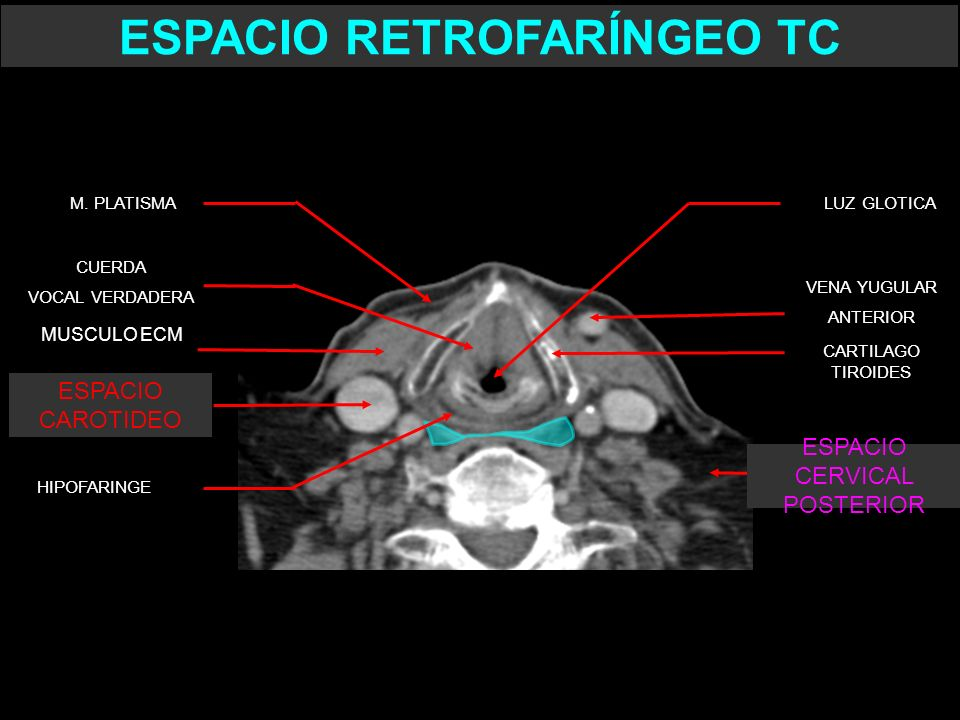 CARTILAGO TIROIDES CUERDA VOCAL VERDADERA LUZ GLOTICA HIPOFARINGE VENA YUGULAR ANTERIOR ESPACIO RETROFARÍNGEO TC ESPACIO CAROTIDEO MUSCULO ECM M. PLAT