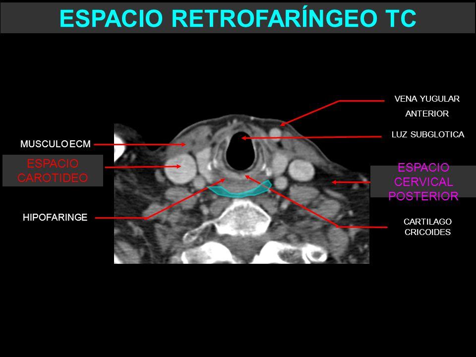LUZ SUBGLOTICA HIPOFARINGE VENA YUGULAR ANTERIOR CARTILAGO CRICOIDES ESPACIO CAROTIDEO MUSCULO ECM ESPACIO CERVICAL POSTERIOR ESPACIO RETROFARÍNGEO TC