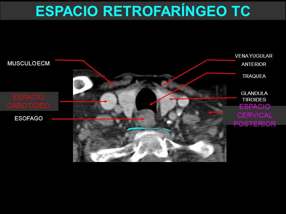 TRAQUEA VENA YUGULAR ANTERIOR ESOFAGO GLANDULA TIROIDES ESPACIO RETROFARÍNGEO TC ESPACIO CAROTIDEO MUSCULO ECM ESPACIO CERVICAL POSTERIOR