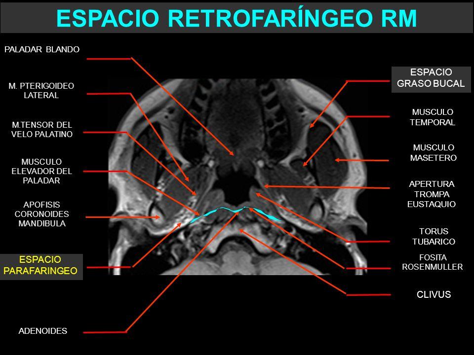 TORUS TUBARICO APERTURA TROMPA EUSTAQUIO FOSITA ROSENMULLER MUSCULO MASETERO MUSCULO TEMPORAL CLIVUS APOFISIS CORONOIDES MANDIBULA ESPACIO GRASO BUCAL