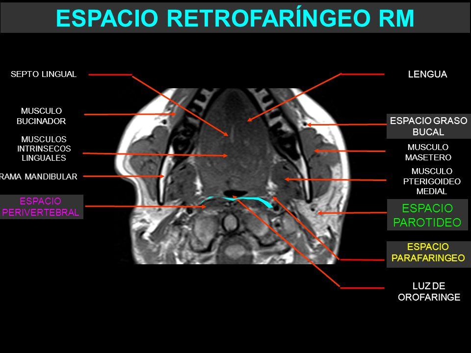 MUSCULO PTERIGOIDEO MEDIAL MUSCULO MASETERO LUZ DE OROFARINGE RAMA MANDIBULAR ESPACIO GRASO BUCAL LENGUA ESPACIO PERIVERTEBRAL MUSCULO BUCINADOR SEPTO