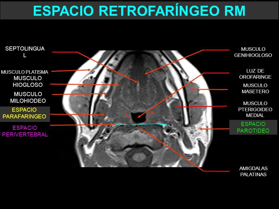 MUSCULO PTERIGOIDEO MEDIAL MUSCULO MASETERO LUZ DE OROFARINGE MUSCULO GENIHIOGLOSO ESPACIO PERIVERTEBRAL MUSCULO PLATISMA SEPTOLINGUA L AMIGDALAS PALA
