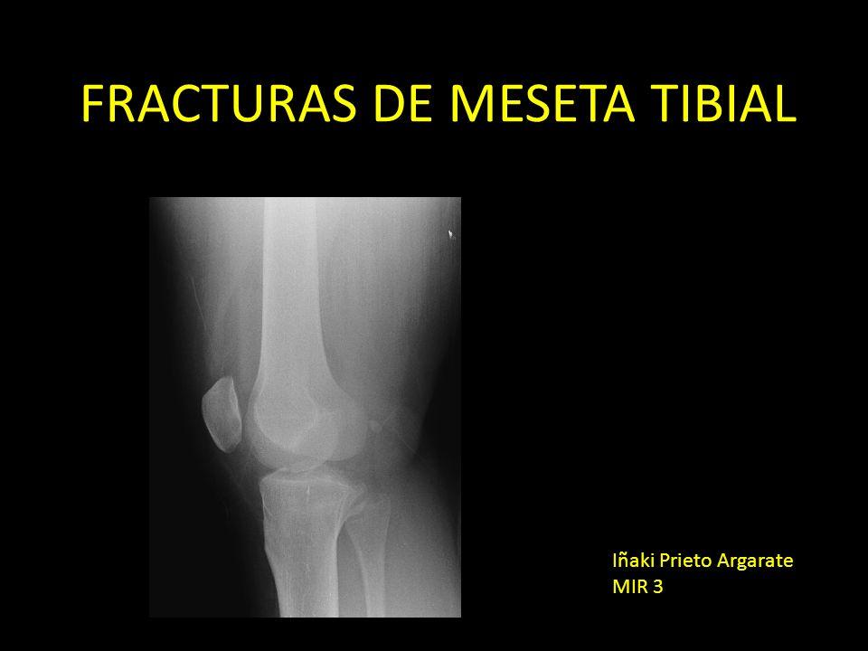 FRACTURAS DE MESETA TIBIAL Iñaki Prieto Argarate MIR 3