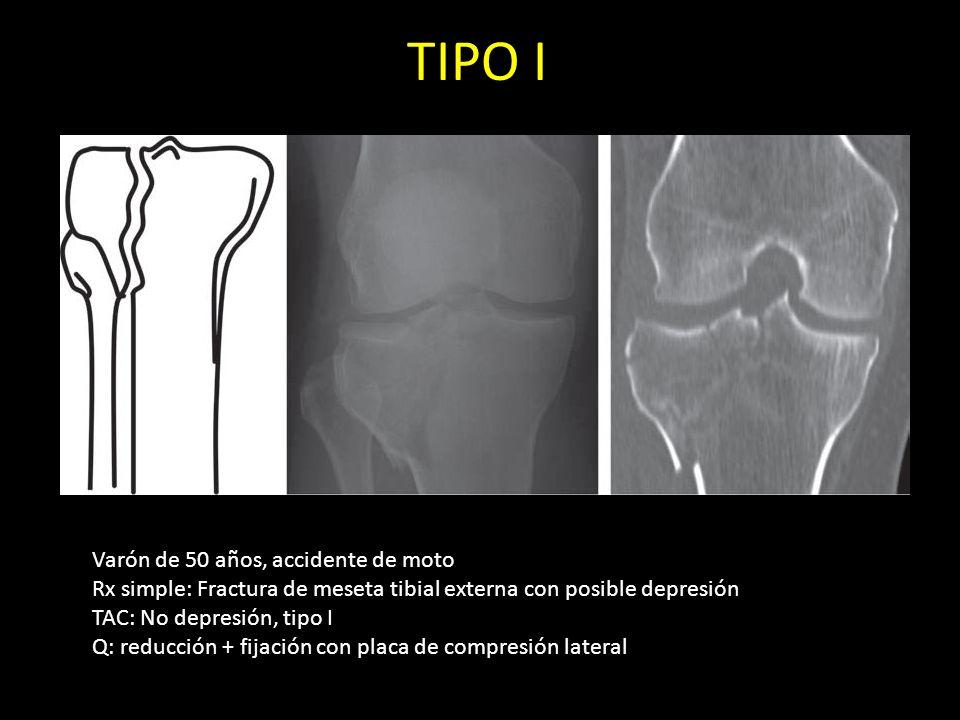 TIPO I Varón de 50 años, accidente de moto Rx simple: Fractura de meseta tibial externa con posible depresión TAC: No depresión, tipo I Q: reducción +