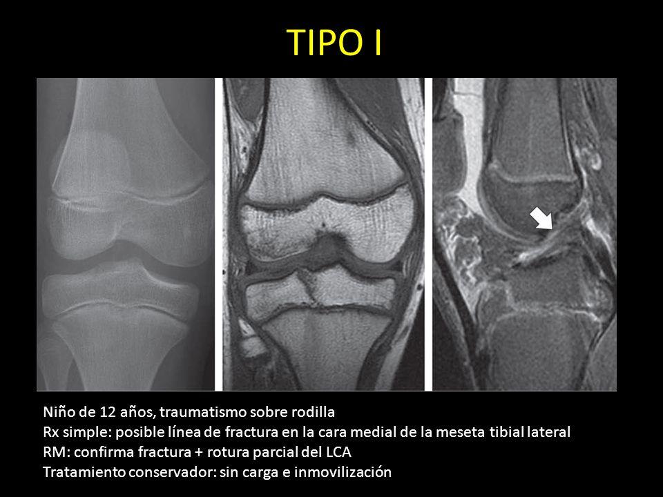 TIPO I Niño de 12 años, traumatismo sobre rodilla Rx simple: posible línea de fractura en la cara medial de la meseta tibial lateral RM: confirma frac